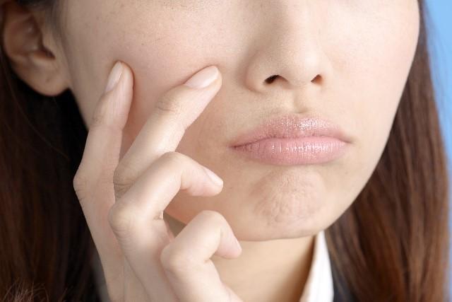 脂漏性皮膚炎の原因と解消法や治療法【薬や漢方とシャンプー】